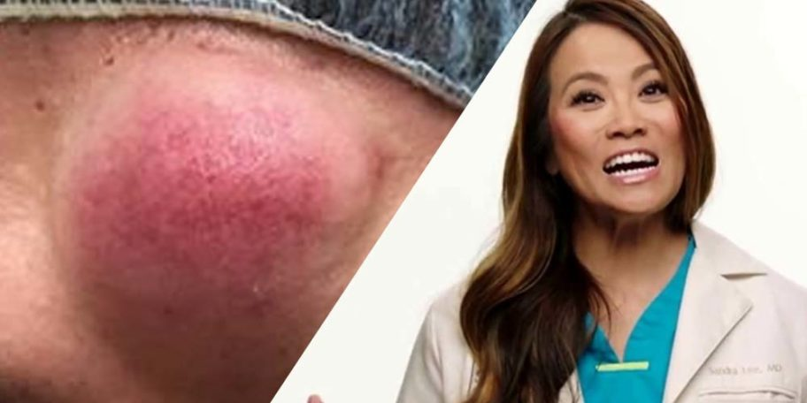 Dr Pimple Popper Squeezes Cyst That Looks Like Lump Of Gum